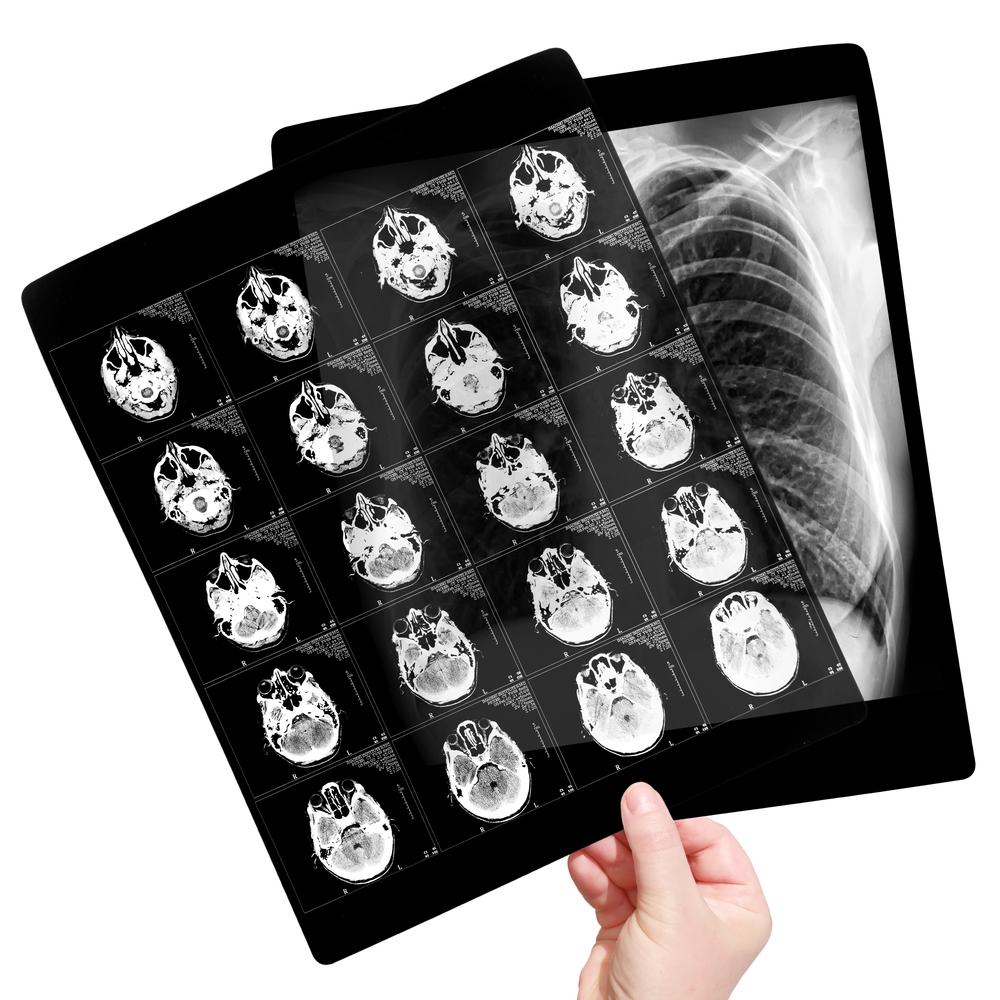 filmes radiologicos